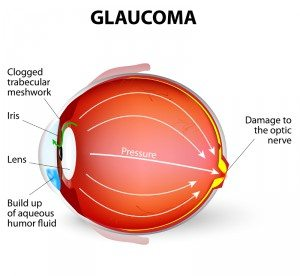 Glaucoma in Huntersville, North Carolina